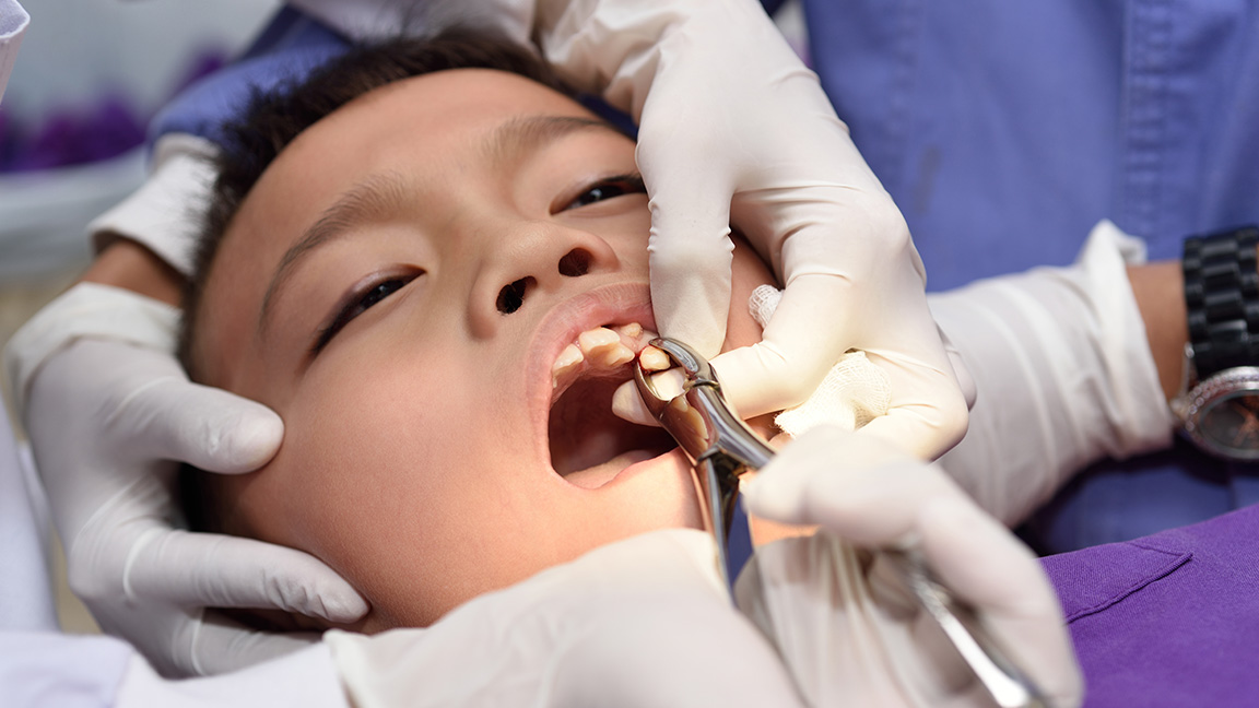 Tooth Extraction Chandler, AZ